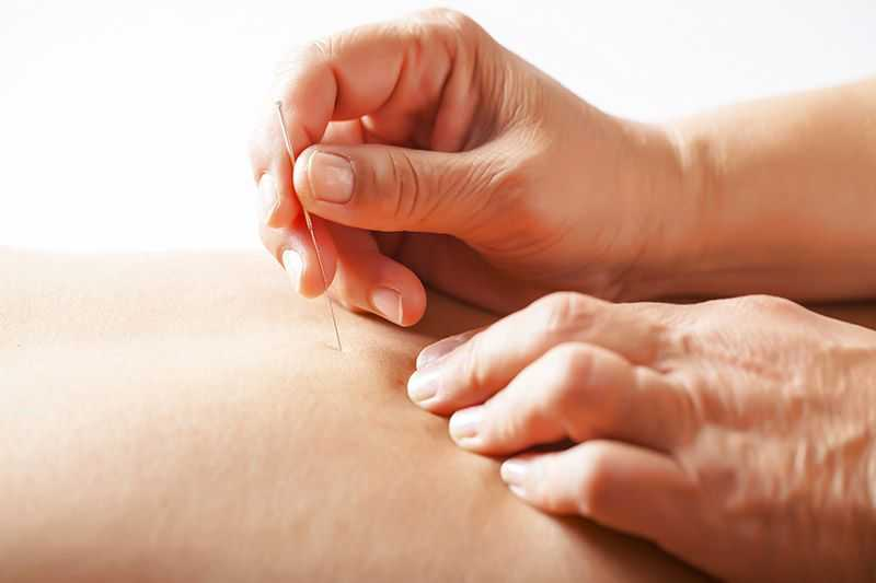 Acupuncture now at MOVE New Farm Clinic