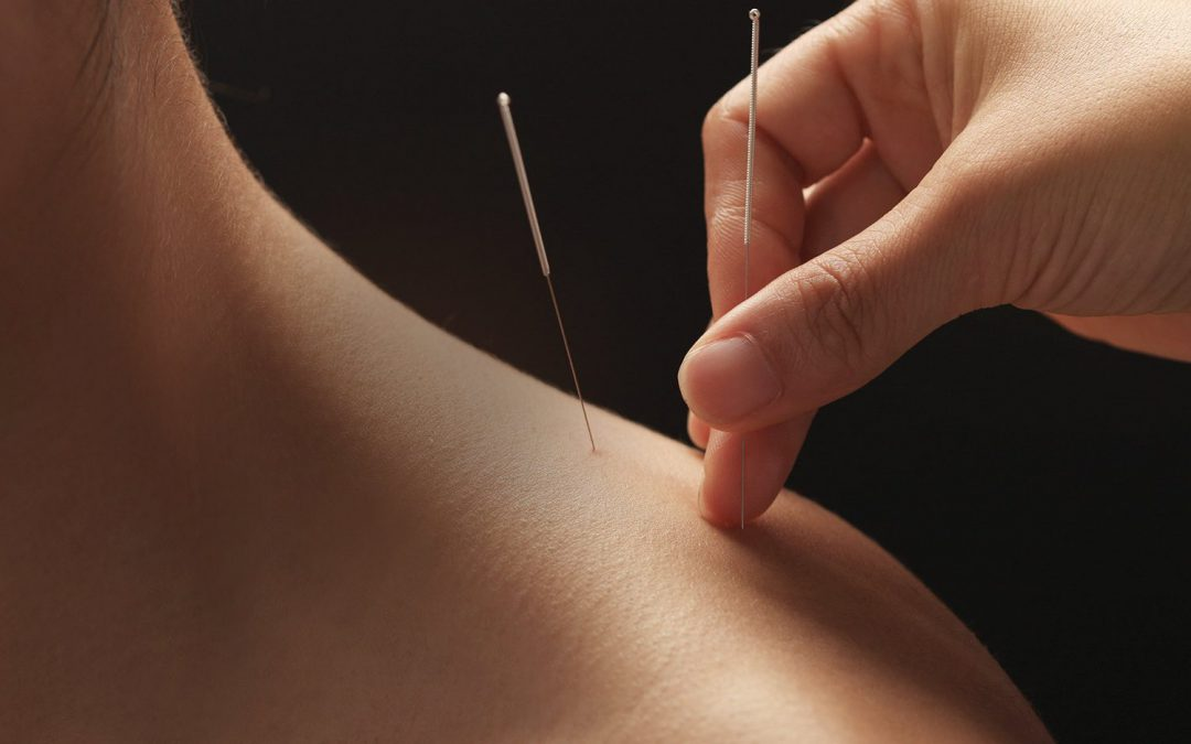 Dry Needling and Osteopathy